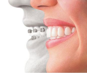 Invisalign Orthodontics Corsicana, Mansfield, Seagoville, Waxahachie